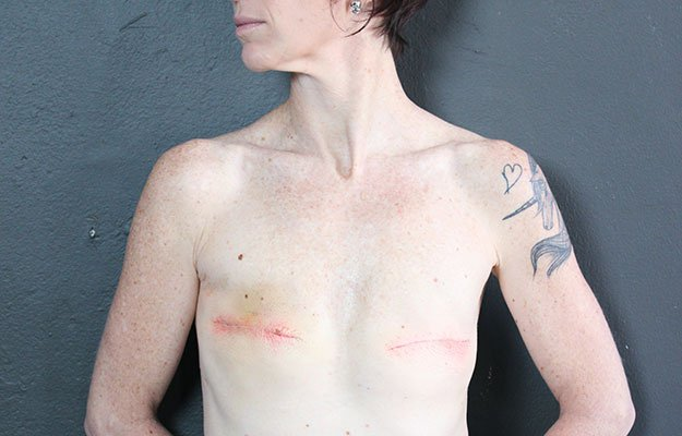 Mastectomy_After2
