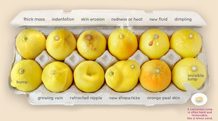 know your lemons breast cancer campaign
