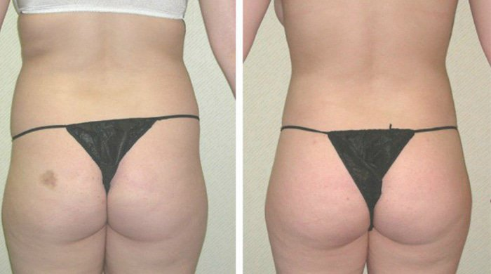 an image of a woman's butt who has had natural plastic surgery's