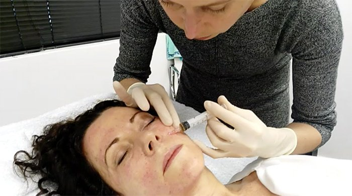 A woman getting injected for the blood plasma facial