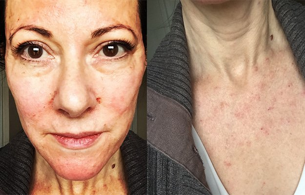 before and after the blood plasma facial