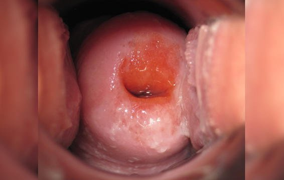 Cervix in the follicular phase