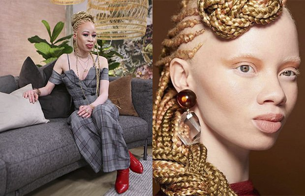 Three Women Share What Albinism Has Taught Them