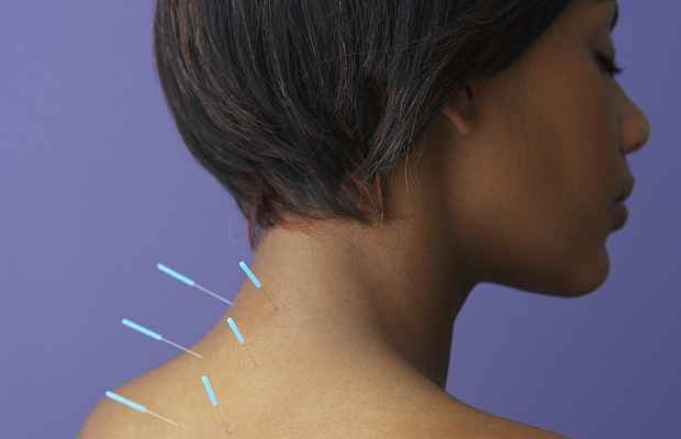 Can Acupuncture Really Help You Lose Weight? We Asked The Experts